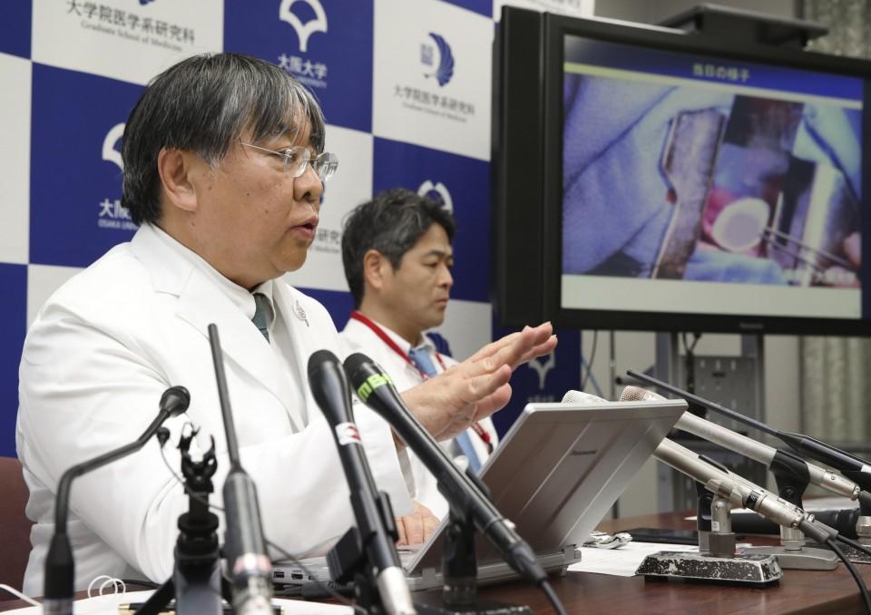 البروفيسور يوشيكي ساوا (على اليسار) خلال مؤتمر صحفي   عبر كيودو